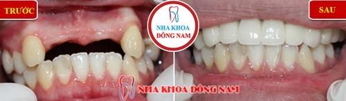 trồng răng giả bằng cầu sứ