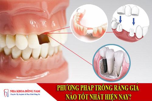 phương pháp trồng răng giả nào tốt nhất hiện nay?