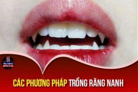 Phương pháp Trồng Răng Nanh giả như thế nào