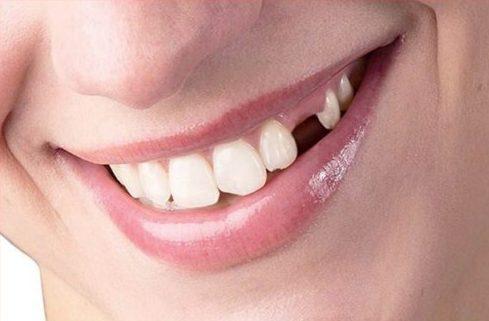 phương pháp trồng răng nanh giả như thế nào 2