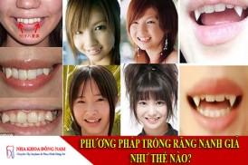 phương pháp trồng răng nanh giả như thế nào?
