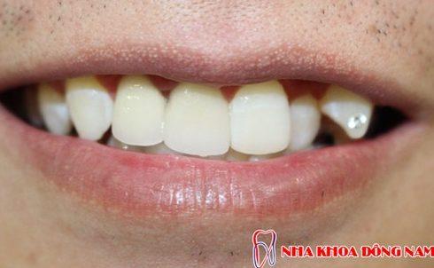 phương pháp trồng răng nanh giả như thế nào 4