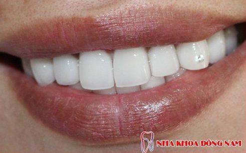 phương pháp trồng răng nanh giả như thế nào 5