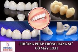 phương pháp trồng răng sứ có mấy loại