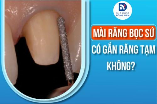 Mài răng bọc sứ có gắn răng tạm không