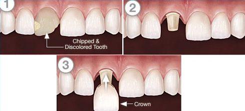 quá trình mài răng bọc sứ có gắn răng tạm không 1