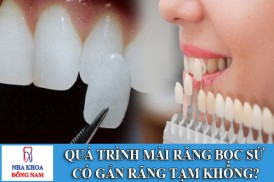 quá trình mài răng bọc sứ có gắn răng tạm không?