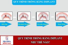 quy trình trồng răng implant như thế nào