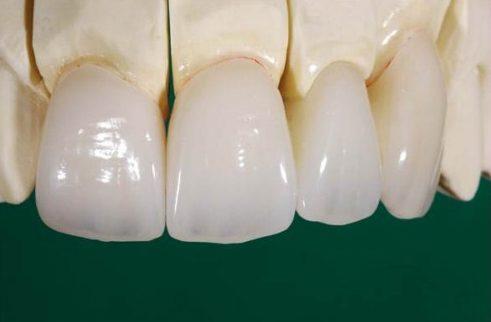 quy trình trồng răng sứ như thế nào 3