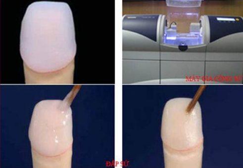 quy trình trồng răng sứ như thế nào 4