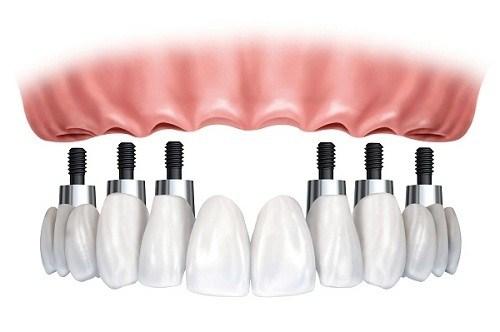 Làm răng giả tháo lắp trên implant có tốt không-1