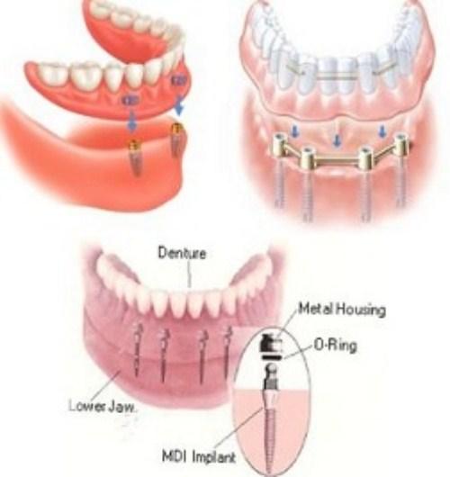 Làm răng giả tháo lắp trên implant có tốt không-10