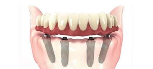 Làm răng giả tháo lắp trên implant có tốt không-2