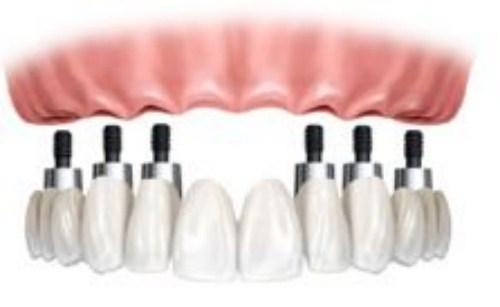 Làm răng giả tháo lắp trên implant có tốt không-9
