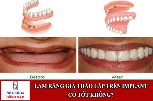 Làm răng giả tháo lắp trên implant có tốt không1