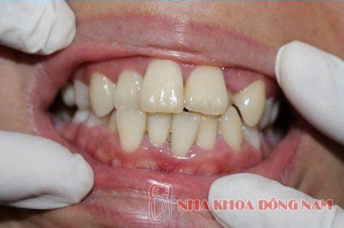 răng mọc lộn xộn và giải pháp khắc phục hiệu quả 1