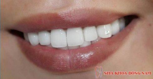 răng mọc lộn xộn và giải pháp khắc phục hiệu quả 3