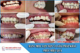 giải pháp khắc phục răng mọc lộn xộn hiệu quả