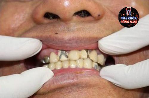răng sứ bị hư có thay được không 2