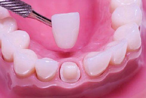 răng sứ bị hư có thay được không 3
