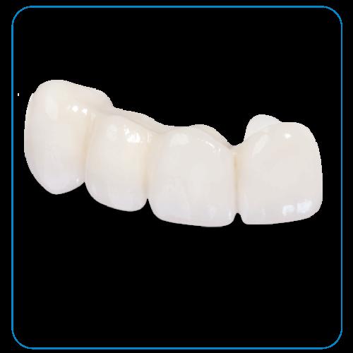 răng sứ emax tại nha khoa đông nam
