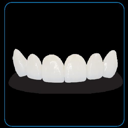 răng sứ HI-zirconia tại nha khoa đông nam