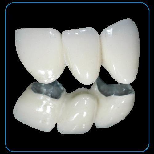 răng sứ kim loại tại nha khoa đông nam