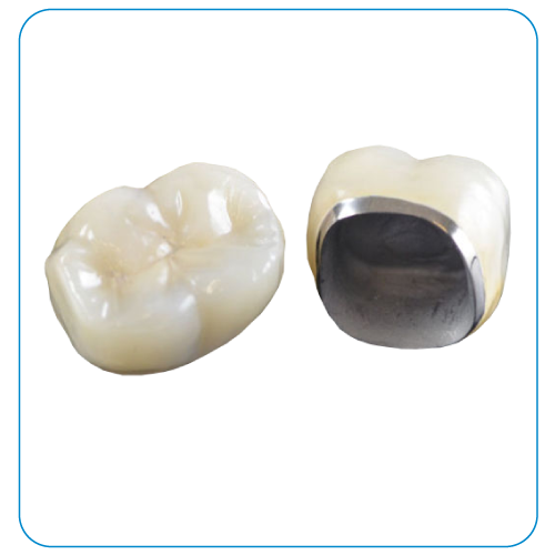 răng sứ titan tại nha khoa đông nam