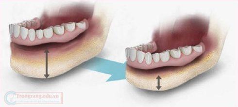 so sánh trồng răng tháo lắp và trồng răng sứ 2