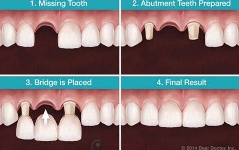 so sánh trồng răng tháo lắp và trồng răng sứ 3