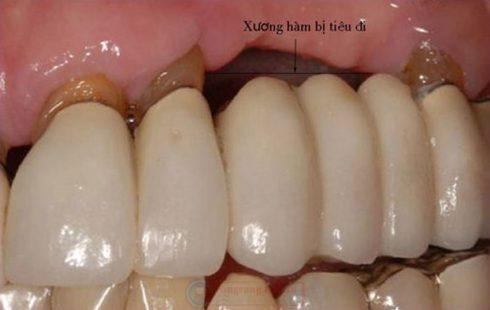 so sánh trồng răng tháo lắp và trồng răng sứ 5