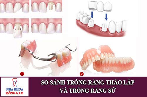 so sánh trồng răng tháo lắp và trồng răng sứ