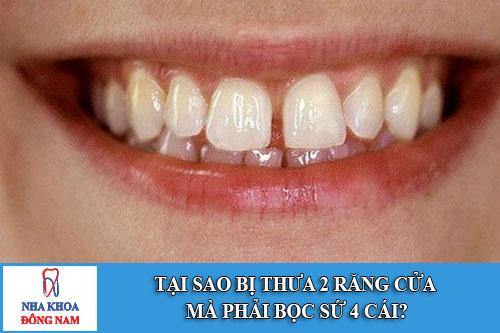 tại sao bị thưa 2 răng cửa mà phải bọc sứ 4 cái?