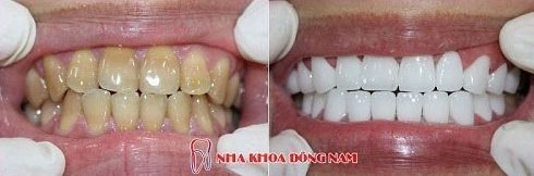 Tại sao nên lựa chọn phương pháp trồng răng sứ cao cấp 3