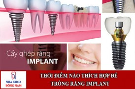 thời điễm nào thích hợp để trồng răng implant