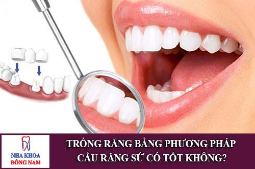 trồng răng bằng phương pháp cầu răng sứ có tốt không