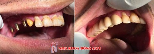 Trồng răng bằng phương pháp implant là gì 2