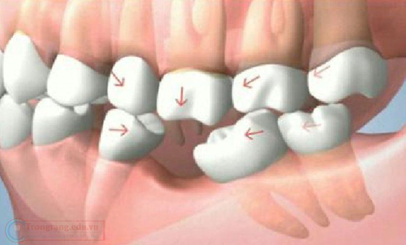 phương pháp trồng răng cấm có đau không 2