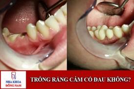 phương pháp trồng răng cấm có đau không