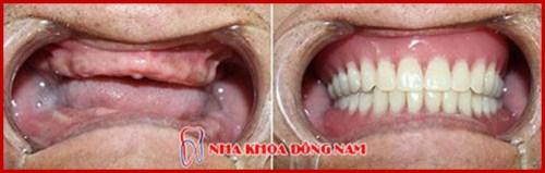 trồng răng giả giá bao nhiêu tại TpHCM 1