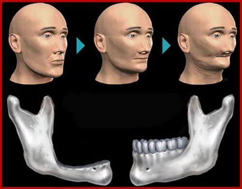 Trồng răng giả giá bao nhiêu tiền 1
