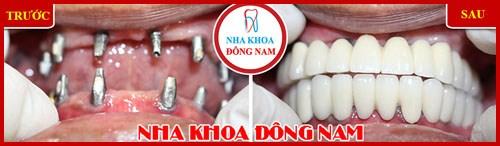 trồng răng giả giá bao nhiêu tại TpHCM 4