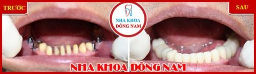 trồng răng giả giá bao nhiêu tại TpHCM 5