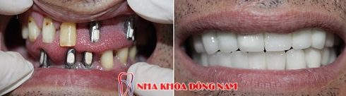 Trồng răng giả giá bao nhiêu tiền6