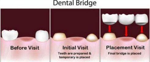 trồng răng giả có tuổi thọ được bao lâu