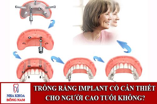 Trồng răng implant có cần thiết cho người cao tuổi không