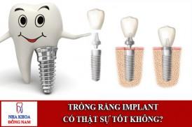 trồng răng implant có thật sự tốt không