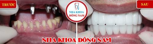 trồng răng giả implant