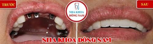 trồng răng implant hàm trên