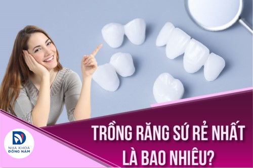 trồng răng sứ giá rẻ bao nhiêu tiền